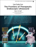 Case Studies From The Frontiers of Therapeutic Endoscopic